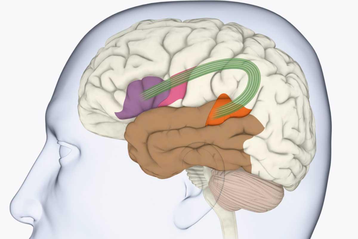 Broca Wernicke Cerebro