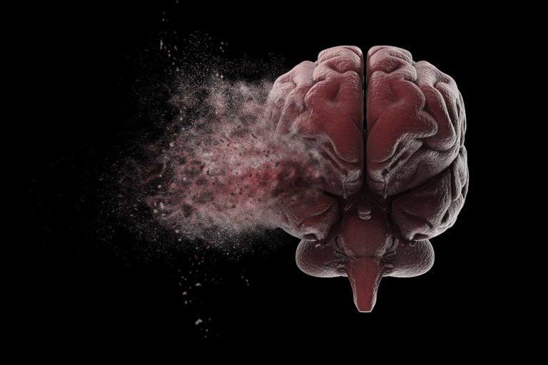 Cerebro Tecnicas Post Mortem