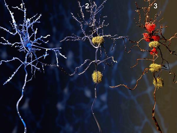 alzheimer-neuronas